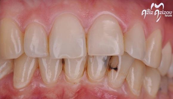 Прямая реставрация нижних фронтальных зубов