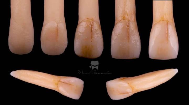 Художественная реставрация зубов с имитацией некариозных дефектов твердых тканей зуба