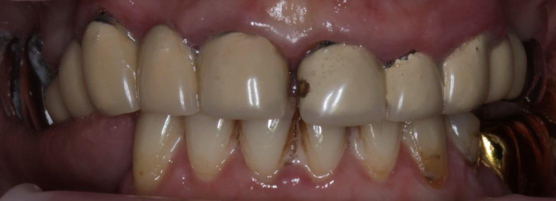 Экструзия зубов 2.2, 2.3