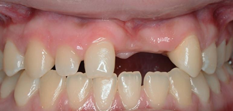Розовая и белая эстетика при реабилитации улыбки