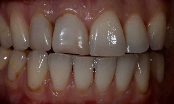 Незаметные реставрации во фронтальном отделе зубов
