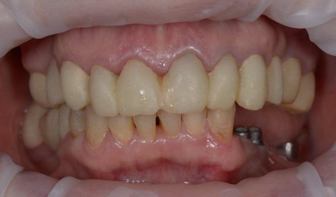 Поэтапная тотальная работа стоматологической реабилитации на имплантатах (начало)
