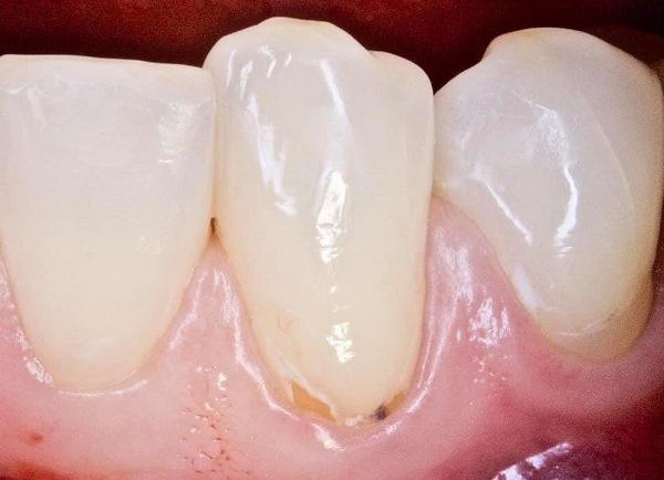 Прямая реставрация зуба 3.3