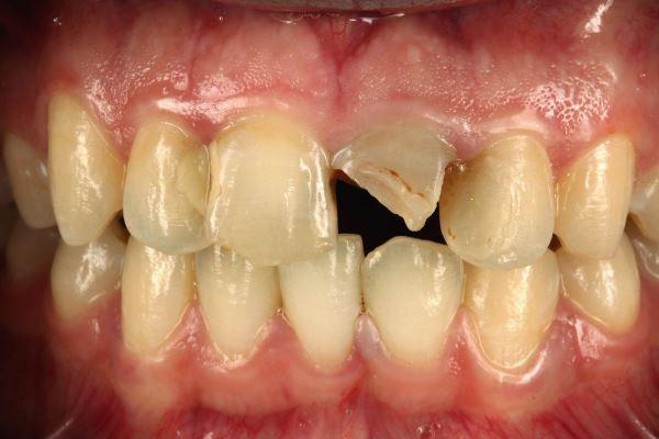 Немедленная имплантация в область центрального резца и восстановление эстетического профиля во фронтальном участке