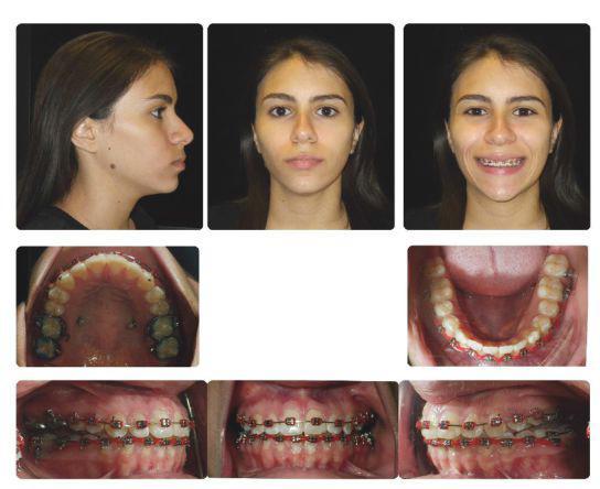 Коррекция открытого прикуса - как способствовать интрузии моляров (1095) - Ортодонтия - Новости и статьи по стоматологии - Профессиональный стоматологический портал (сайт) «Клуб стоматологов»