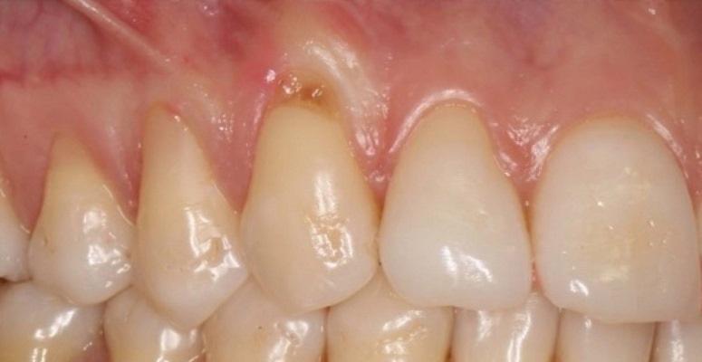Восстановление ширины кератинизированной десны на поверхности корней зубов