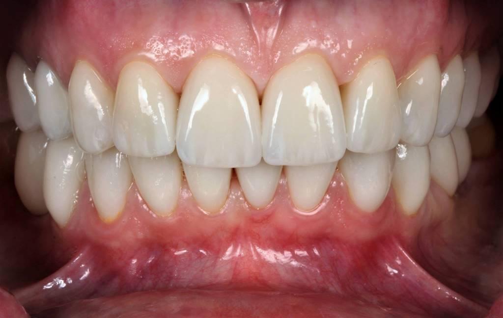 виниры на зубы без обточки