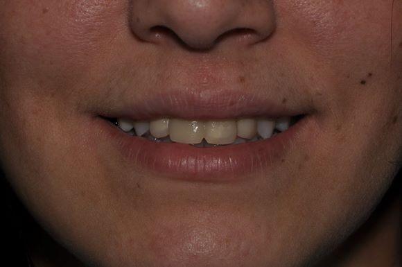 Немедленная имплантация с последующим протезированием фронтальной группы зубов на в/ч коронками E.max