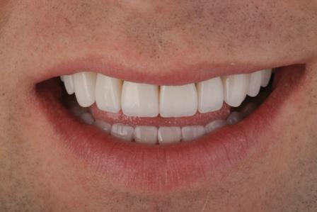 Семь главных нарушений при формировании дизайна улыбки