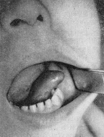 Лечение кист малых и подъязычных слюнных желез лазером