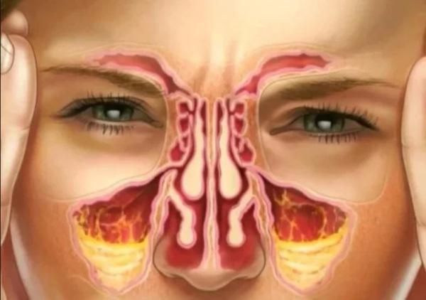 Гайморит эндодонтической этиологии