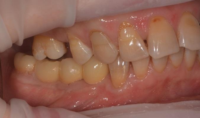Направленная костная регенерация и установка имплантатов в боковом отделе нижней челюсти