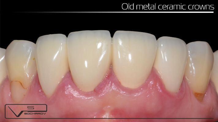 Клинический случай во фронтальном отделе верхней челюсти с отсроченным результатом