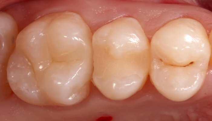 Лечение кариеса 15 зуба