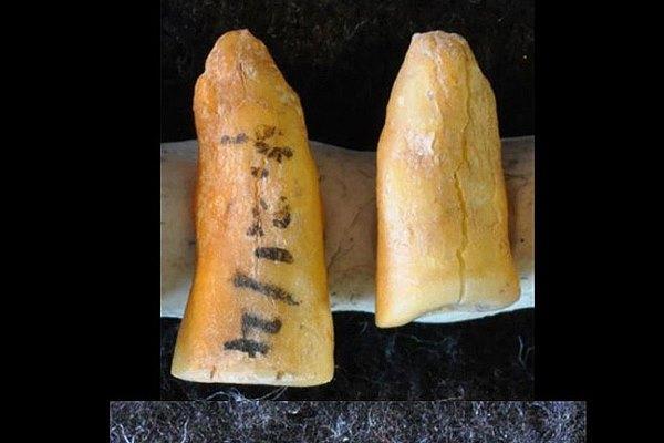 В Италии нашли зубную пломбу из битума, растительных волокон и волос