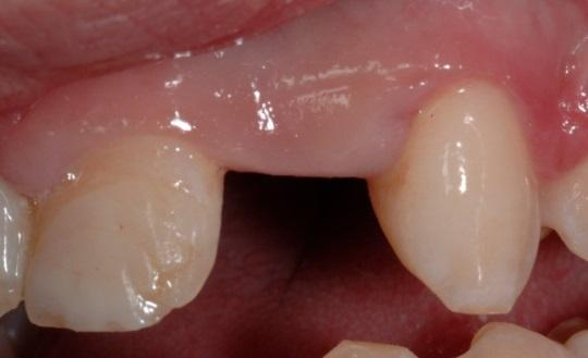 Семилетнее наблюдение за Integrated Abutment Crown