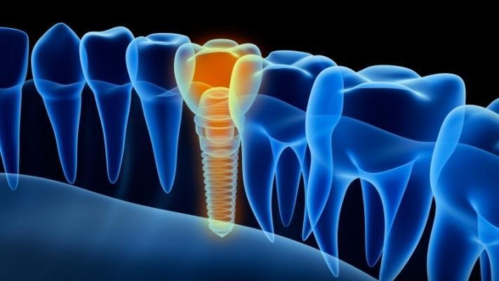 Умные зубные имплантаты