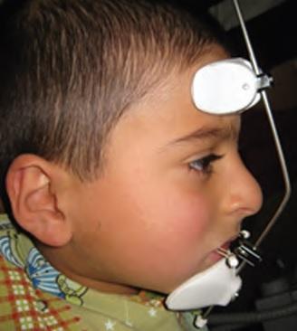 Фото 5: Лицевая маска для стимуляции роста верхней челюсти.