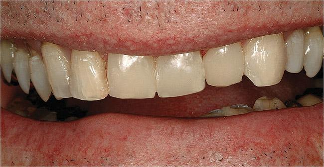 Некариозные поражения твердых тканей зубов: лечить или не лечить? (3589) - Стоматология - Новости и статьи по стоматологии - Профессиональный стоматологический портал (сайт) «Клуб стоматологов»