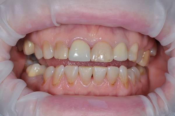 Сохранение зуба и восстановление его культевой вкладкой