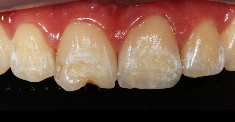 Реставрация переднего зуба после ортодонтического лечения