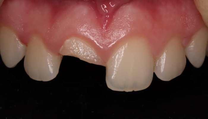 Травматический скол 11 зуба