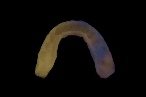 В Китае разработали зубную каппу для ранней диагностики кариеса и пародонтита