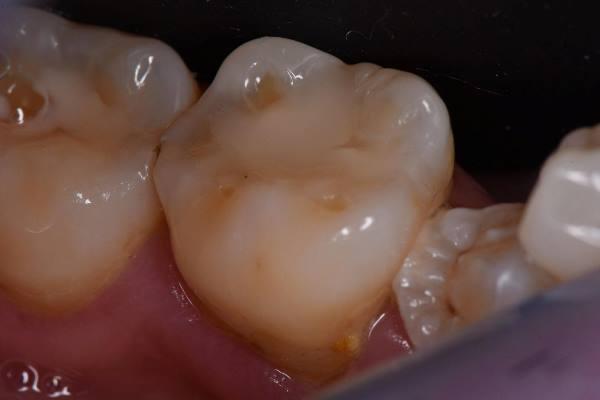 Реставрация зубов 4.6 и 4.7