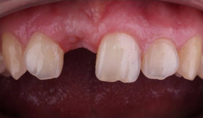 Восстановление утраченного центрального зуба коронкой из прессованной керамики с опорой на имплантат
