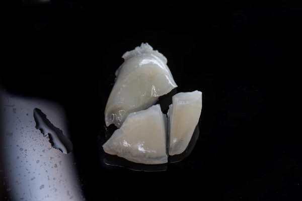 Тяжелый перелом коронки с обнажением пульпы