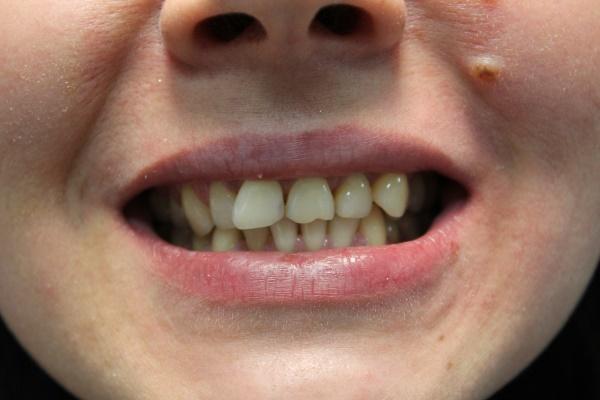 Эстетическая и функциональная реабилитация зубов верхней челюсти при помощи керамических реставраций