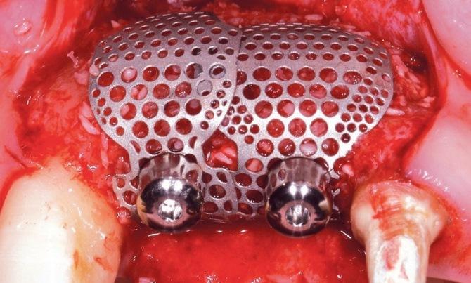 Клиническое применение титановой мембраны SmartBuilder