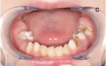 Стоматологические признаки врожденного дискератоза