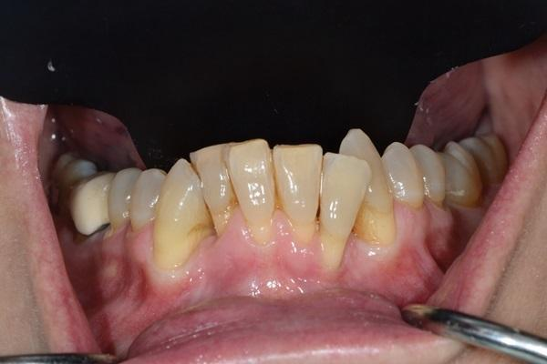 Прогностичность аугментации вестибулярной костной пластинки при комплексном ортодонтическом лечении