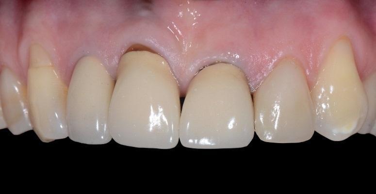 Ортодонтическая экструзия для коррекции десневых зенитов зубов