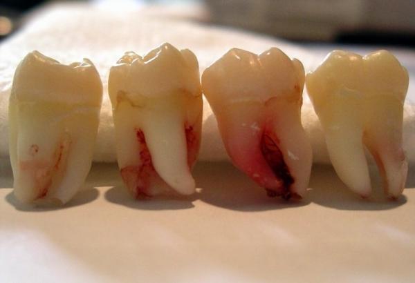 Зуб мудрости (8ой зуб)