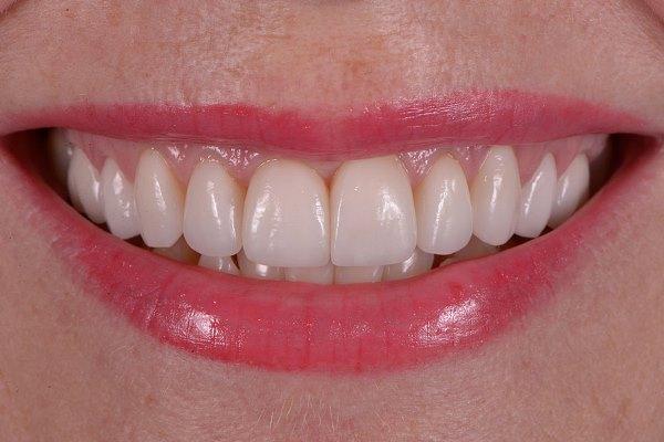Протоколы реставрационной стоматологии с целью достижения биомиметики (2002-2017)
