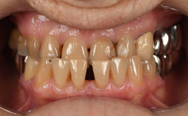 Тотальная реабилитация зубочелюстной системы