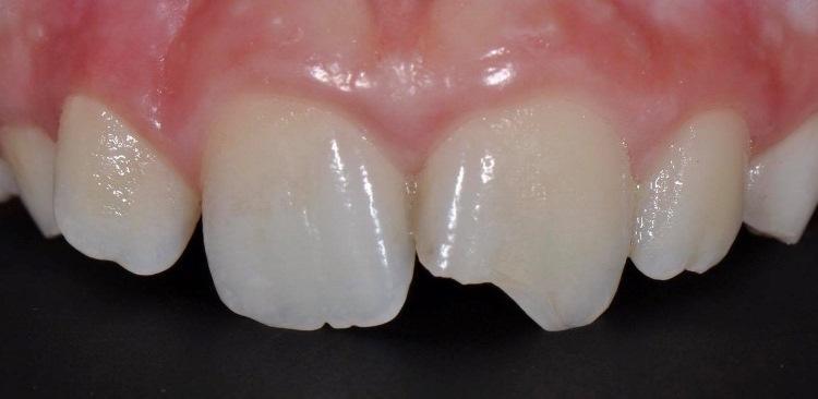 Травма зуба 2.1