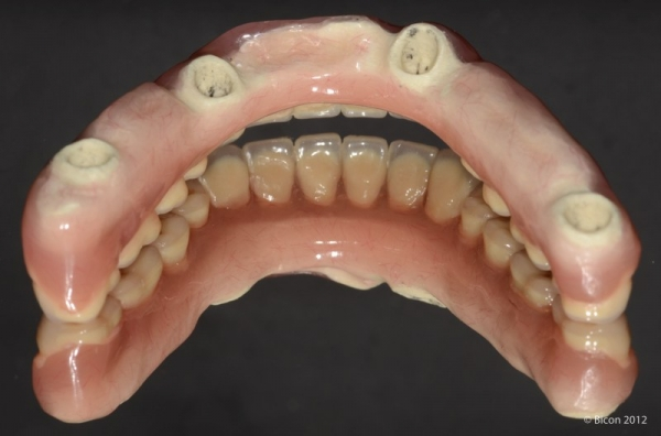 Зеркальное отображение нижнечелюстного армированного протеза TRINIA, вид снизу.