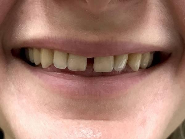 Эстетическая реабилитация улыбки с помощью непрямых керамических реставраций