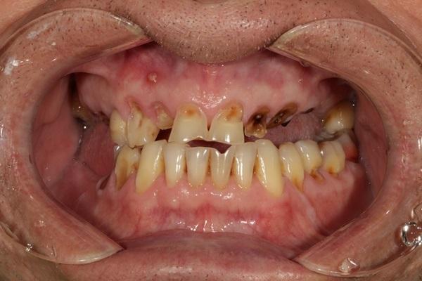 Протезирование зубов с применением комбинации традиционного бюгельного протеза и дентальных имплантатов