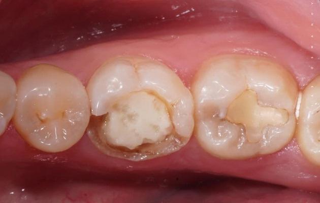 Восстановление зуба 36