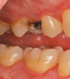 Одномоментная установка вкладки: спасение зуба