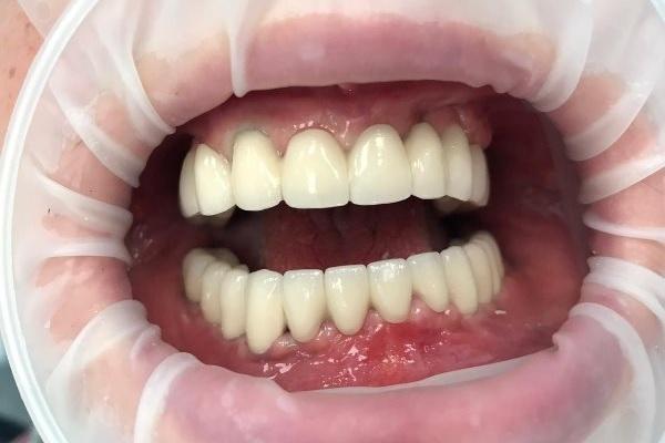 Тотальное восстановление жевательной и эстетической функции обеих челюстей МК коронками на имплантатах
