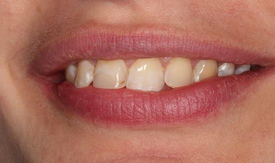 Изменение формы, ангуляции и цвета фронтальной группы зубов с помощью реставраций из прессованной керамики