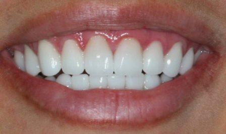Надежное и экономичное восстановление разных групп зубов