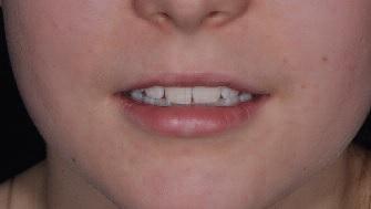 Междисциплинарный подход в эстетической стоматологии