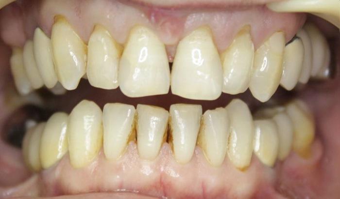 Восстановление фронтальных зубов верхней челюсти при дефектах пломб и кариозных поражениях