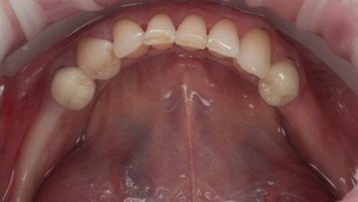 Восстановление кольцевого дефекта нижней челюсти при помощи 4 имплантатов